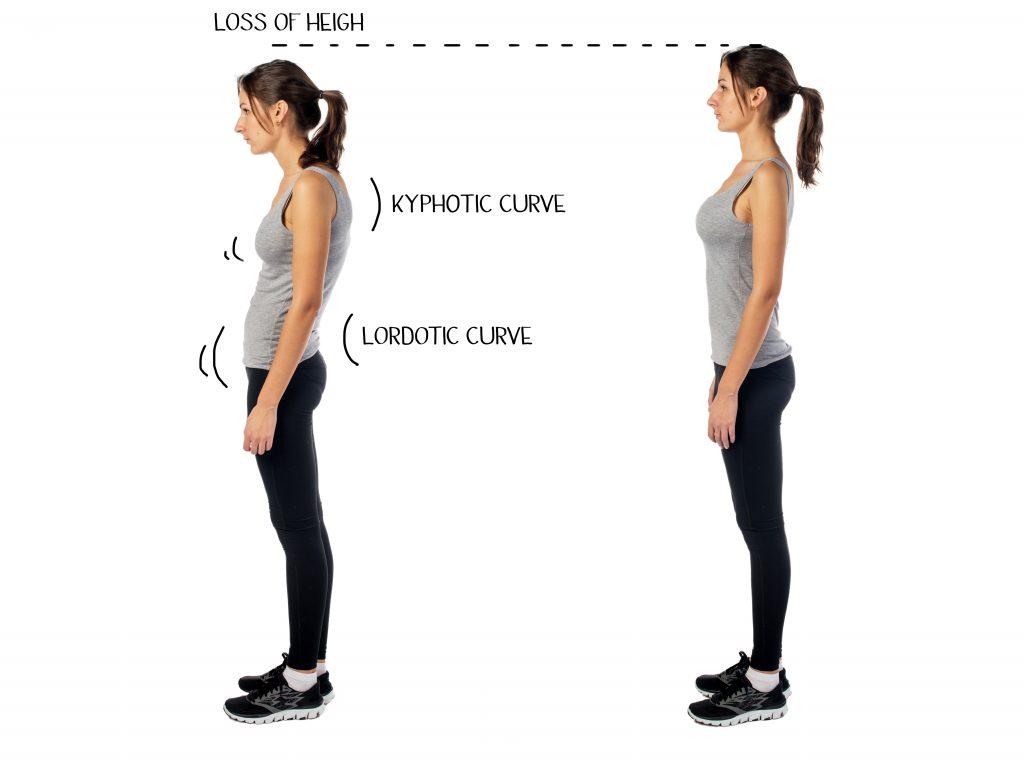 猫背と正しい姿勢の比較(女性)