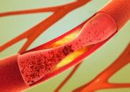 圧迫された血管